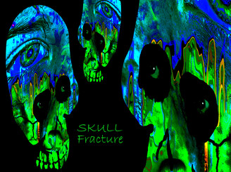 Skull Fracture by W_Paul_Thomas